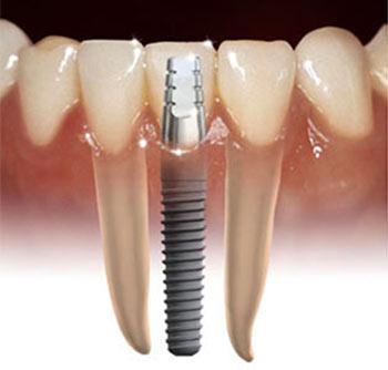implant tedavisi