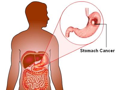 mide kanseri tedavi