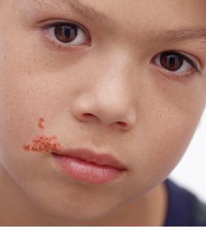 impetigo okul yaraları tedavisi