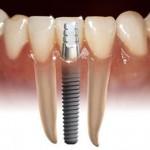 Diş Şekilleri