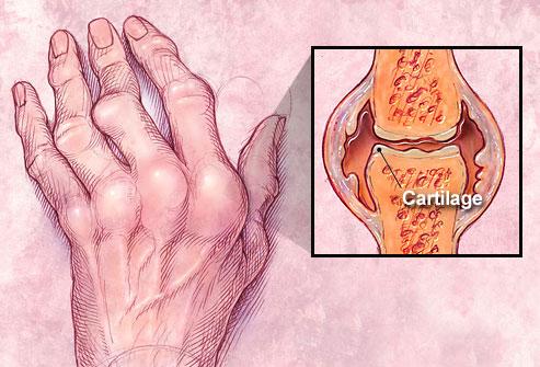romatoit artrit nedir ve belirtileri