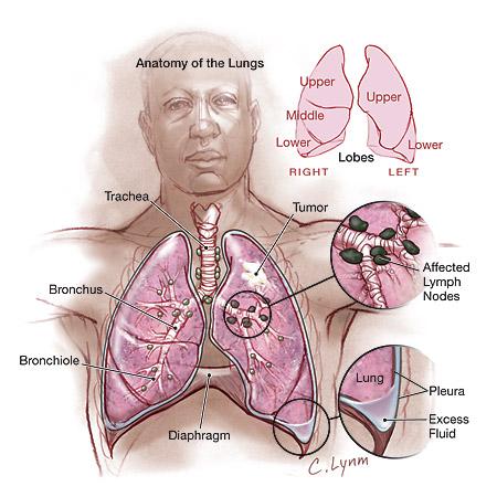 akciğer kanserinin yeri