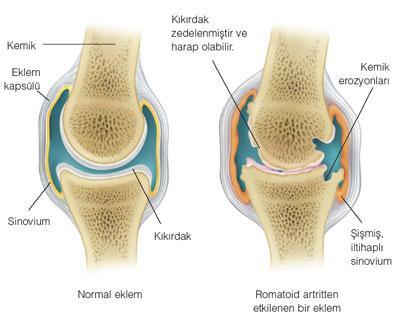 artrit hastalığı ve artrit hastalığı cerrahi tedavisi