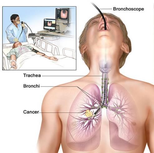 anestezi ve akciğer rahatsızlığı tedavisi