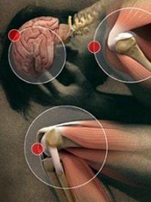 genç artriti belirtileri ve tedavisi