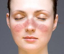 sistemik lupus eritematozus sistemik kızartılı lupus