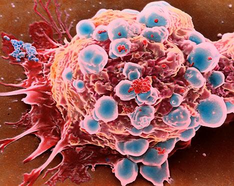 kanser tedavisi