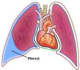 nefes darlığı