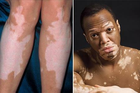 deri hastalıklarının nedenleri