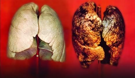 kanserli akciğer
