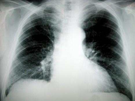 Akciğer kanseri sinsi ilerliyor