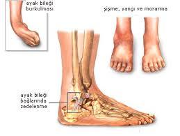 ayak bileği burkulması