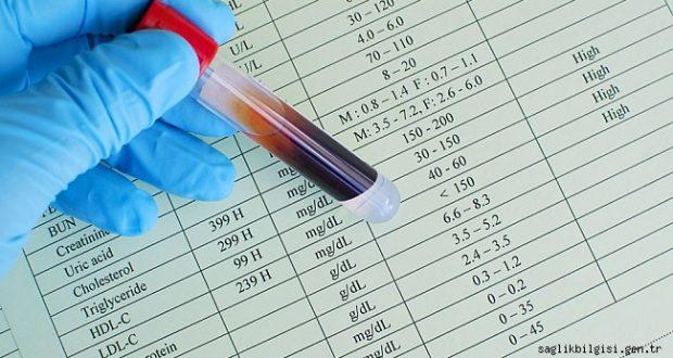 Harvard Sabri Ülker Merkezi'nden bilim dünyasında kolesterol ile ilgili çığır açan keşif