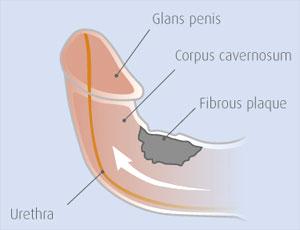 Penis Eğrilikleri