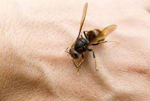 Arı Sokması Durumunda Ne Yapılır?