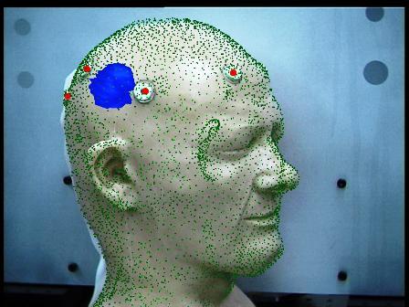 Beyin tümörü nedenleri
