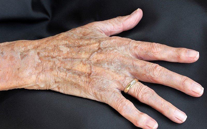 Damar Yaşlanması Belirtileri