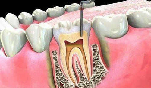 Diş Apsesi Kanal Tedavisi