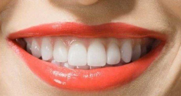 Diş Kanaması Nedenleri