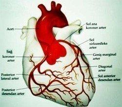 Koroner arter hastalığı nedir?