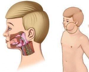 Kulak Arkası Şişlik Nedenleri