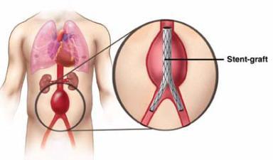 Yürek damarlarında genişleme nedenleri