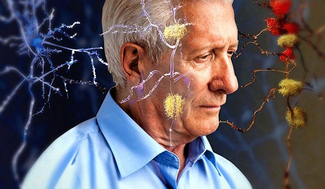 Alzheimer için yeni molekül